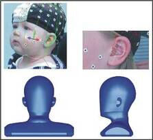 Examination of binaural hearing of children. Top: Measurement of geometric data of head and ears. Bottom: Parametric CAD-model of a child's head for simulation purposes.
